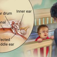 middle-ear-infection